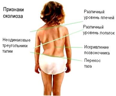 сколиоз у детей